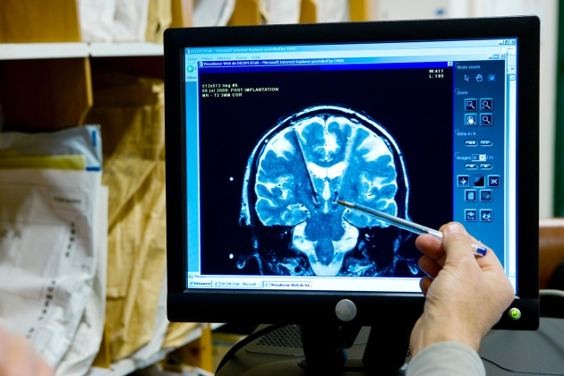 Brain scan image from article